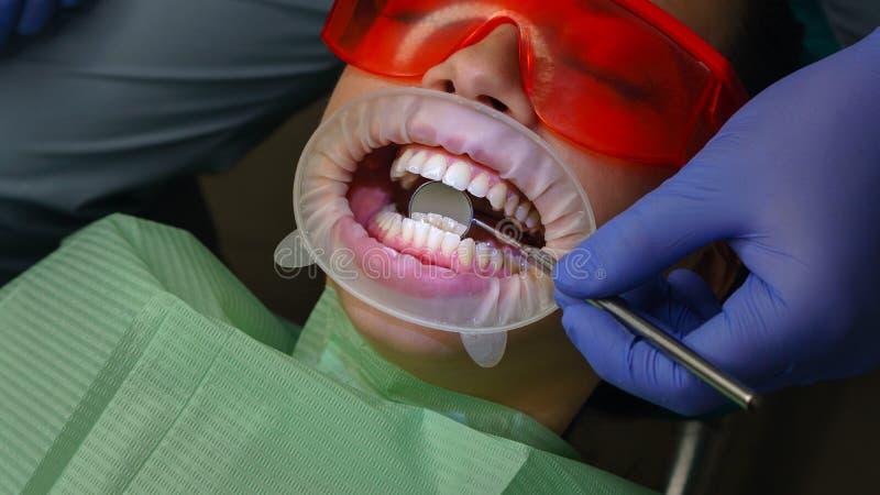 Paciente de la muchacha en cl?nica dental imágenes de archivo libres de regalías