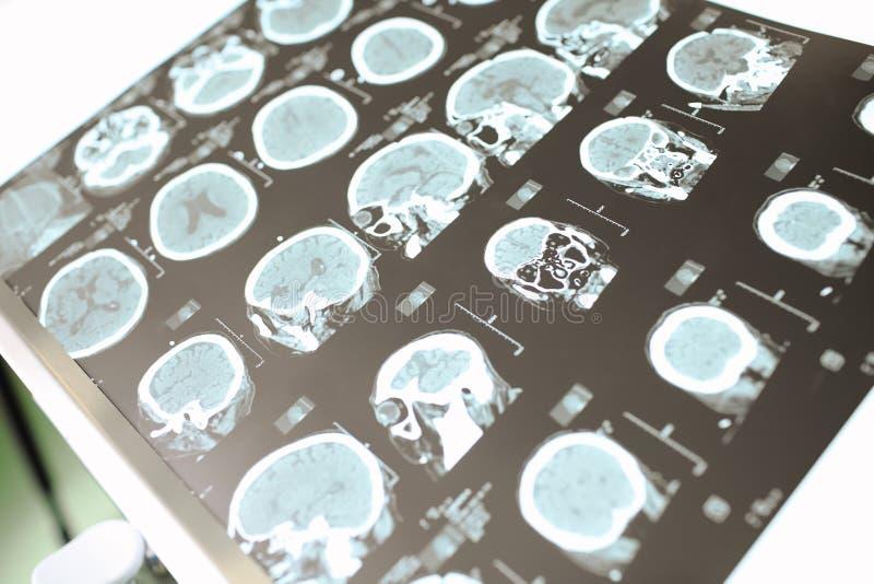 Paciente neurológico do CT foto de stock