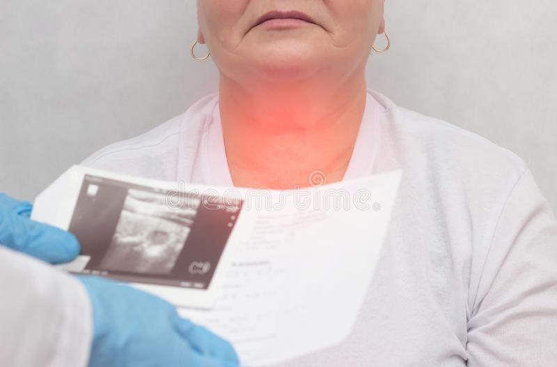 Pacjent przy lekarką z tarczycową chorobą guzowaty goiter, w górę, medyczny, rozognienie obrazy royalty free