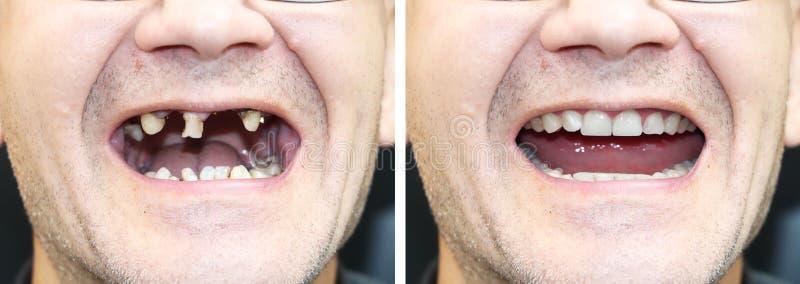 Pacjent przy ortodontą przed i po instalacją stomatologiczni wszczepy Ząb strata, gnijący zęby, denture, forniry obrazy royalty free