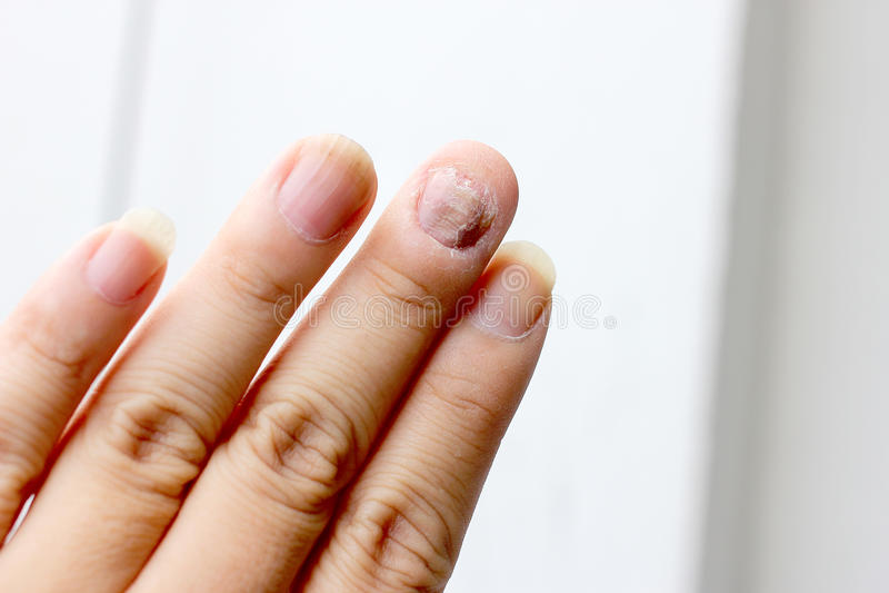 Paddestoelbesmetting op Spijkershand, Vinger met onychomycosis - zachte nadruk royalty-vrije stock afbeelding