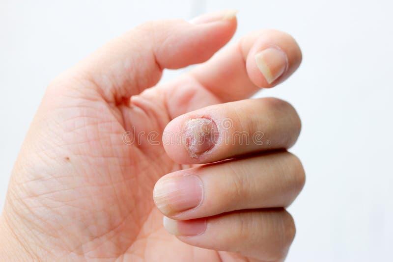 Paddestoelbesmetting op Spijkershand, Vinger met onychomycosis - zachte nadruk stock afbeelding