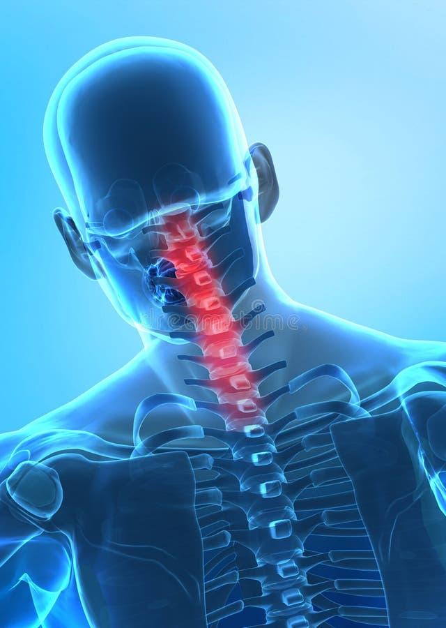 Pain in cervical spine concept vector illustration