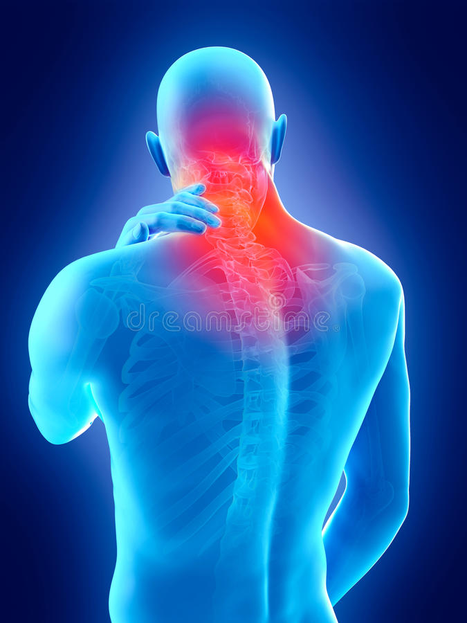 Pain in the neck. Medically accurate 3d illustration of pain in the neck royalty free illustration