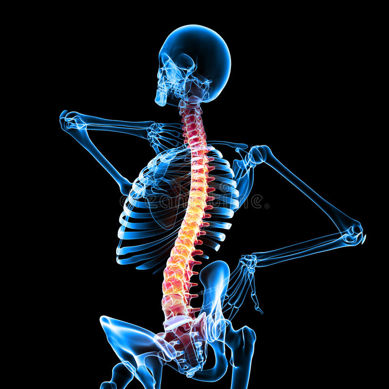Download Pain Of Spinal Cord Stock Image - Image: 24860311