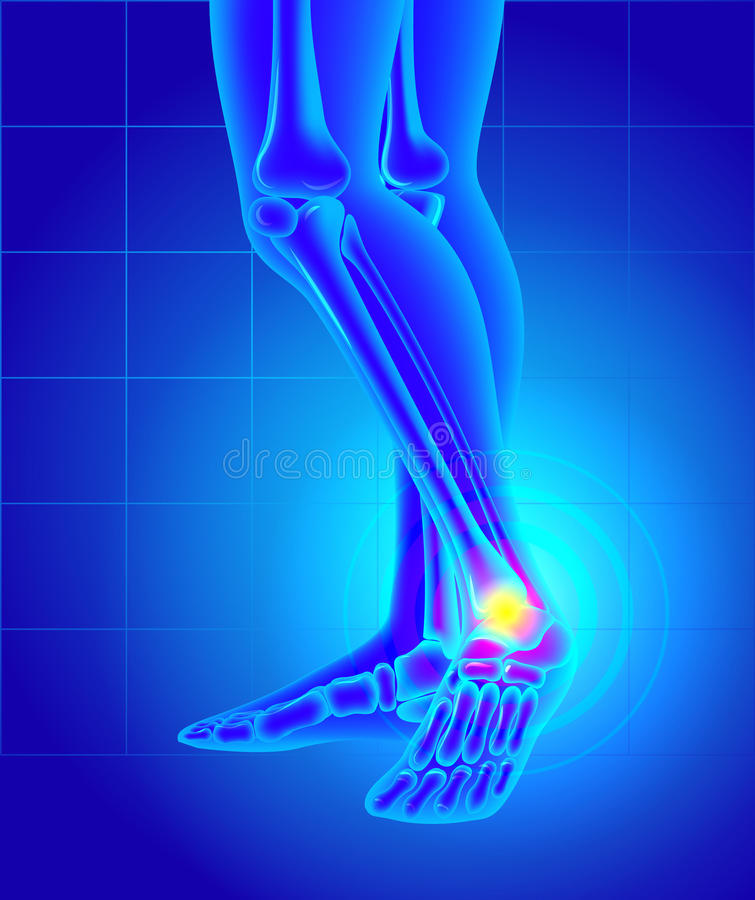 Pain And Swelling On The Inside Of The Ankle. Pain Of A Foot. An ...