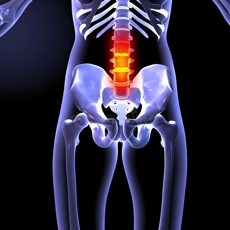 Download Painful back stock illustration. Image of bones, cray - 27524379