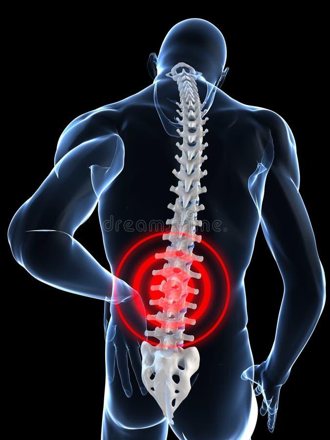 Download Painful back stock illustration. Illustration of spine - 8856713