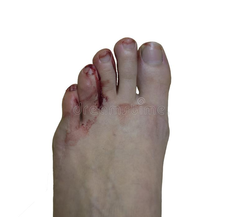 Painful bloody blister fingers on woman feet caused by small new hiking shoes, isolated on white background, top view.  royalty free stock photos