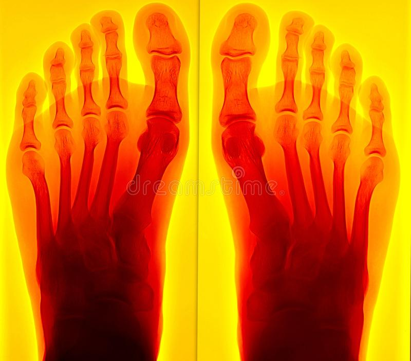 Painful foot Xray royalty free stock images