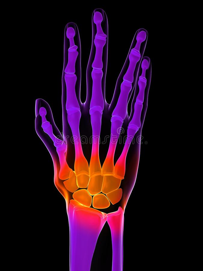 Download Painful hand stock illustration. Illustration of joint - 14137792