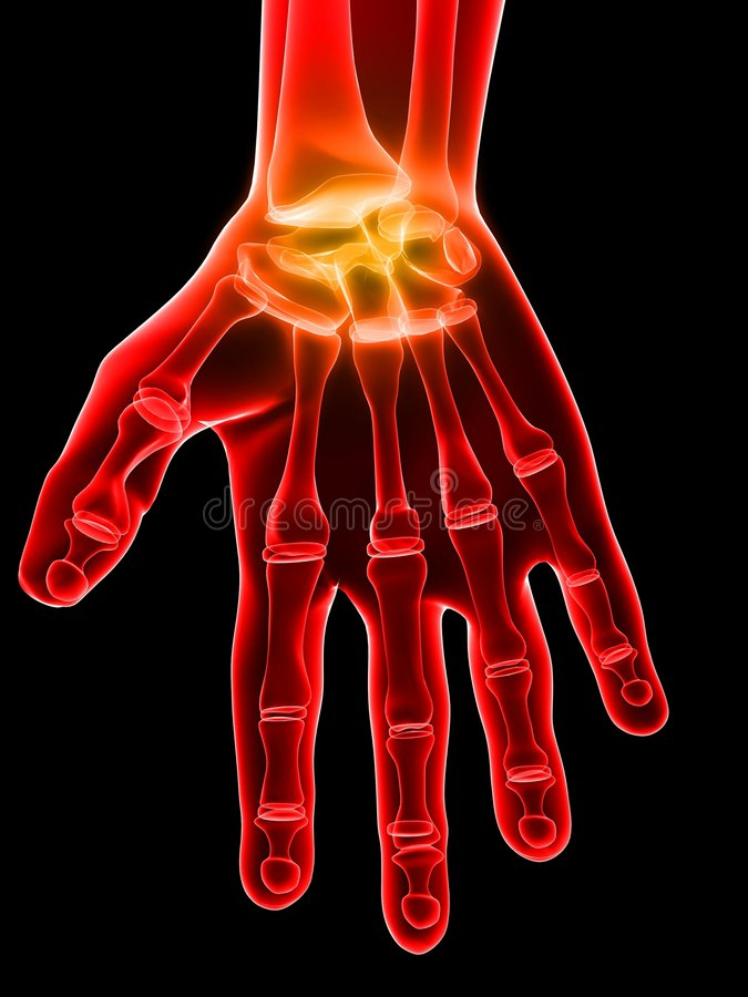 Download Painful hand stock illustration. Image of pain, hand, rheumatism - 5564162