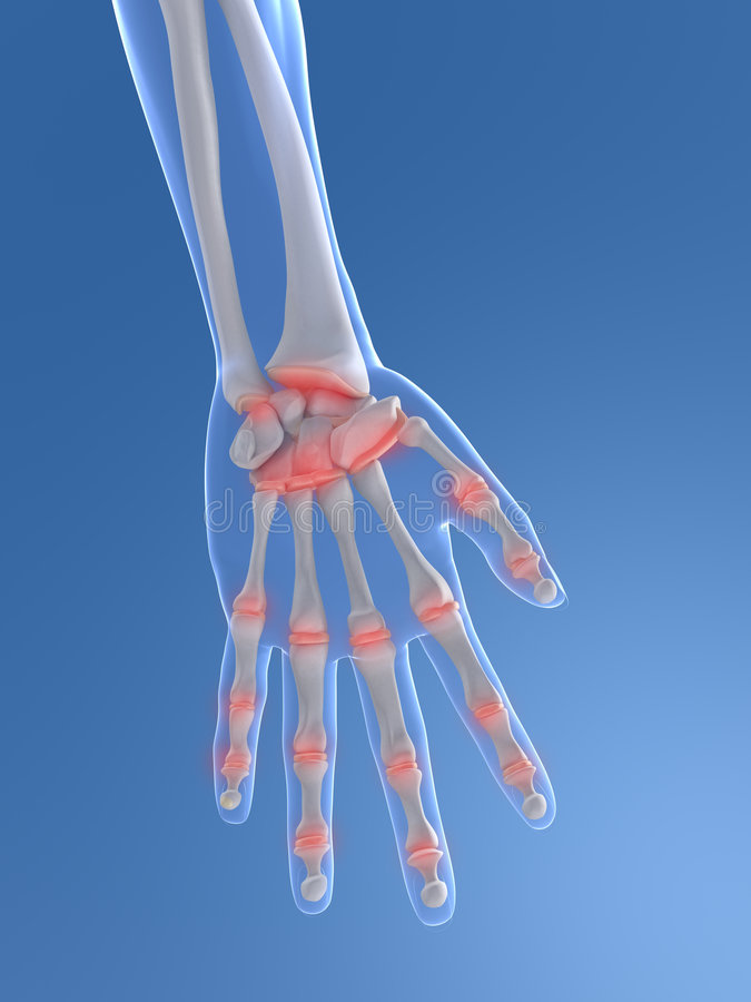 Download Painful Hand Royalty Free Stock Image - Image: 9094236