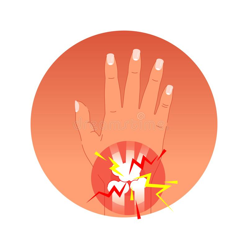 Painful joint concept vector illustration with human palm and bones. Graphic symbol pain circles. royalty free illustration
