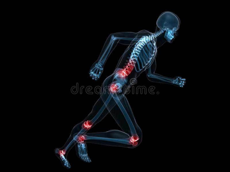 Download Painful joints stock illustration. Image of medical, pain - 12902100