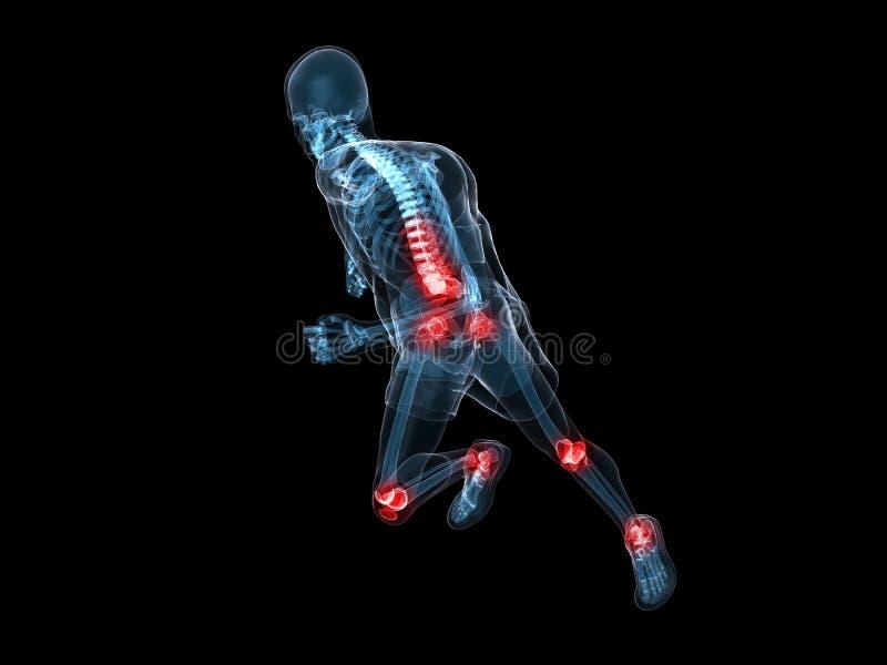 Download Painful joints stock illustration. Image of spine, bones - 12902154
