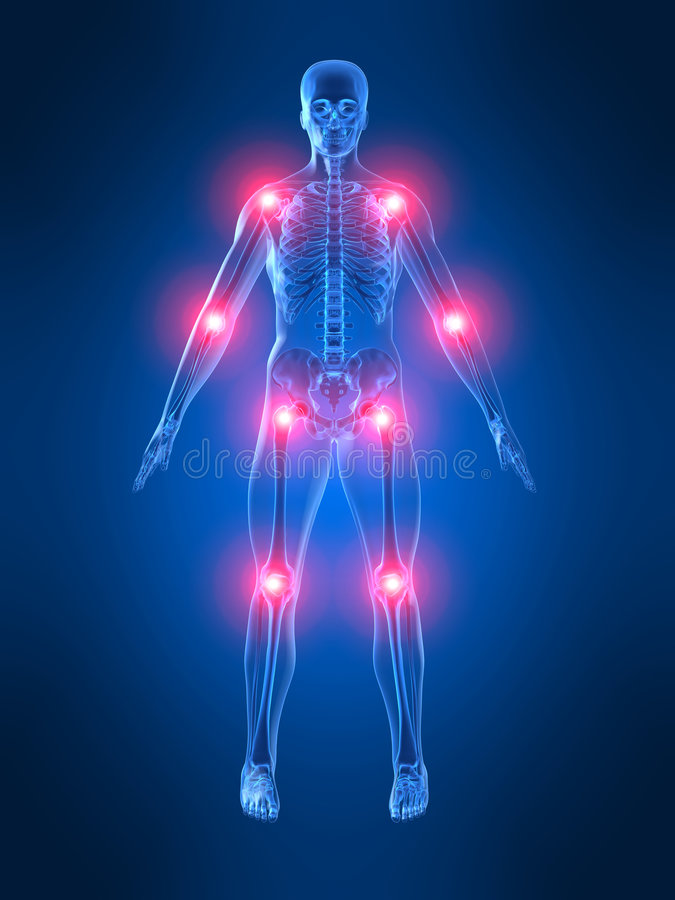 Free Painful Joints Stock Image - 2463471