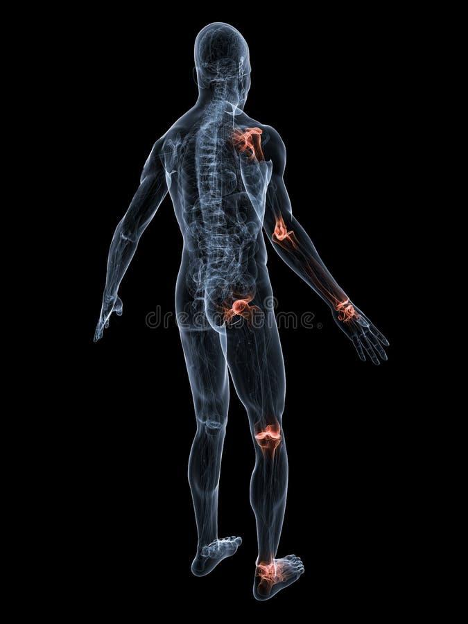 Download Painful joints stock illustration. Illustration of arthralgia - 7218385