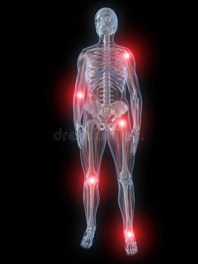 Painful Joints Stock Image
