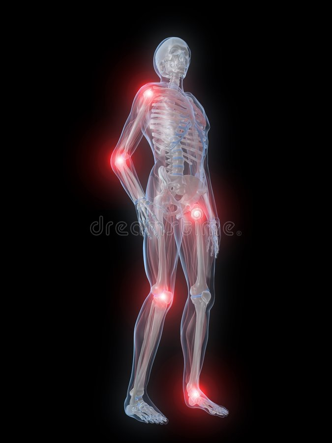 Painful Joints Stock Photos