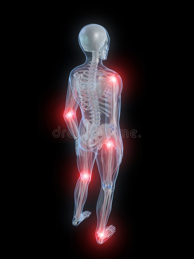 Painful Joints Royalty Free Stock Image