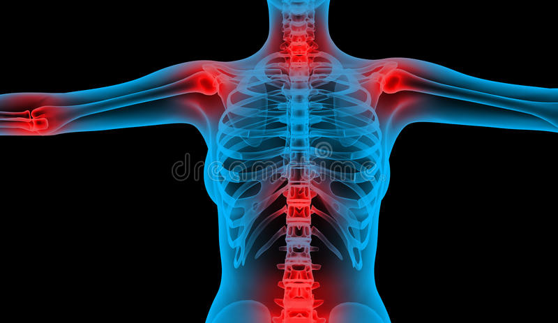 Download Painful joints low body stock illustration. Image of ribs - 18932262