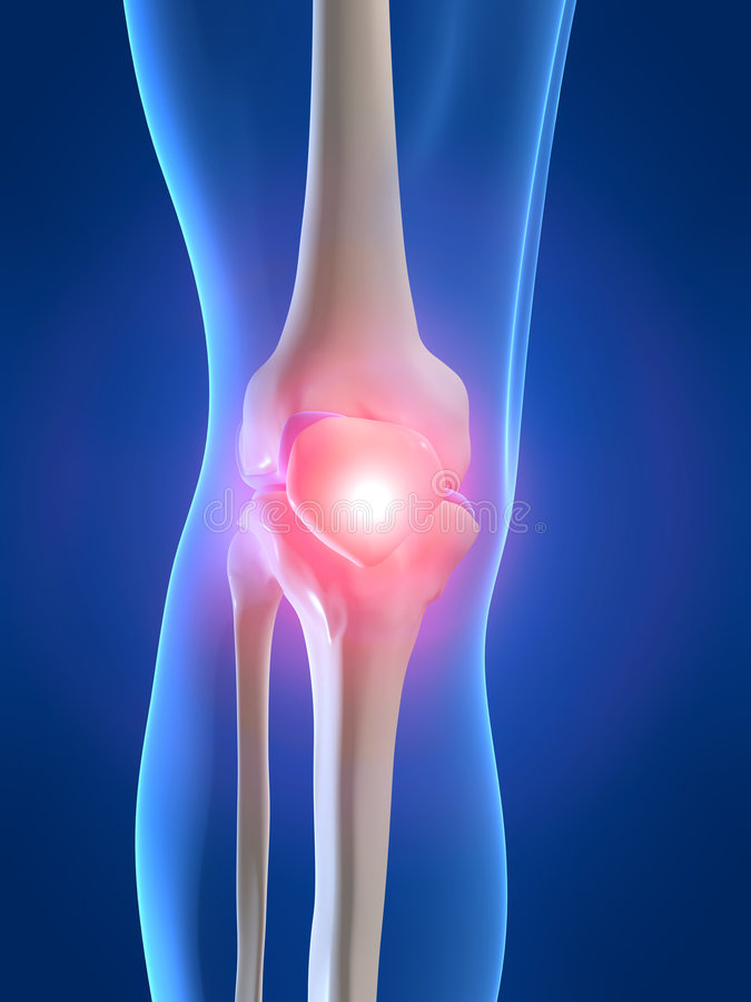 Painful knee vector illustration