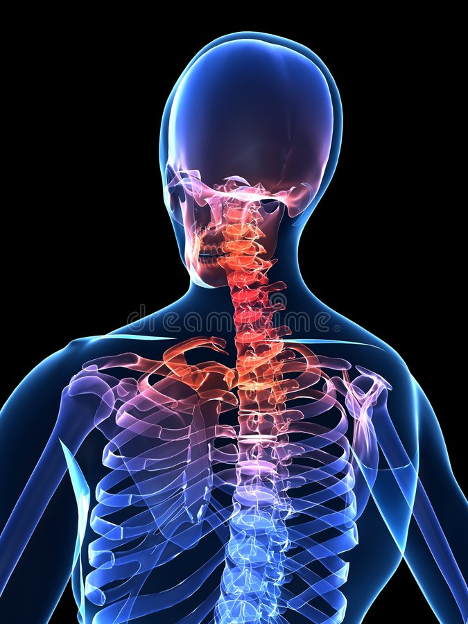 Download Painful neck stock illustration. Image of backbone, bones - 6787677