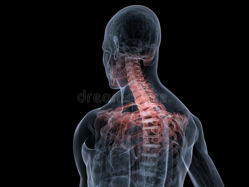 Download Painful neck stock illustration. Image of human, torso - 7218498