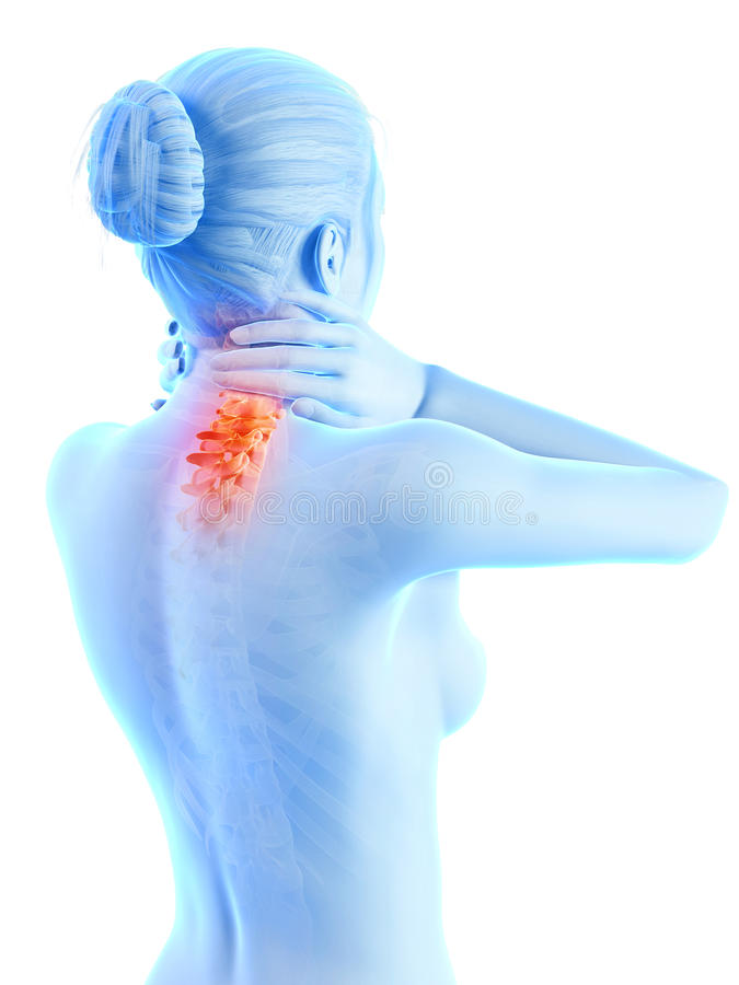 Painful neck - visible spine vector illustration