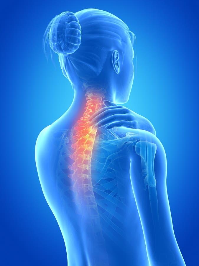 Painful neck royalty free illustration