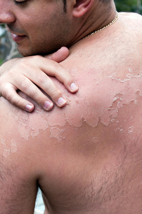 Painful Peeling Sunburn. Close up detail of a very bad sunburn showing the peeling blistered skin of a mans back. Shallow depth of field stock images