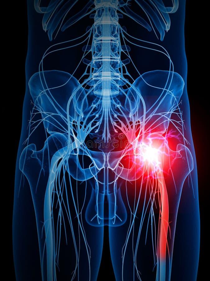 painful sciatic nerve vector illustration