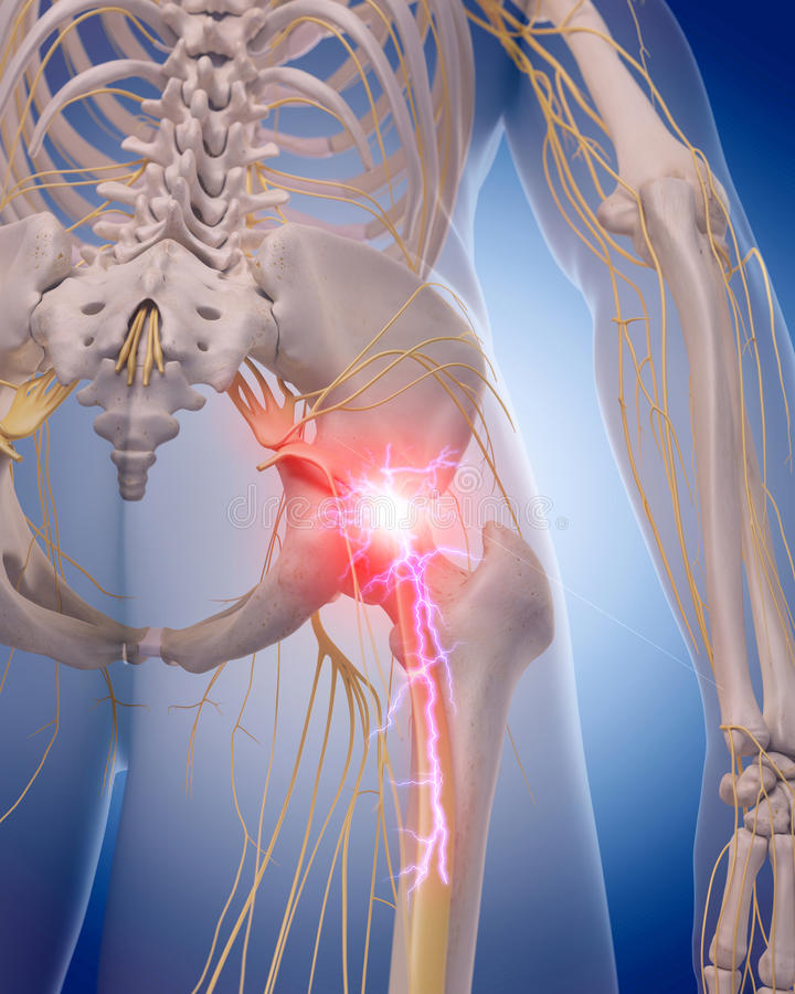 Painful sciatic nerve. Medically accurate illustration of a painful sciatic nerve stock illustration