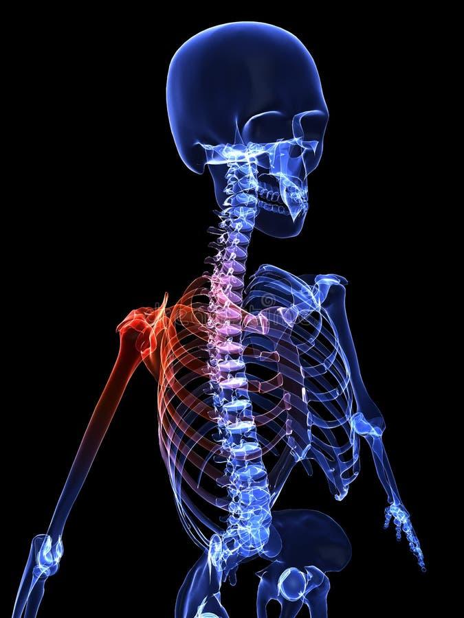Painful shoulder stock illustration