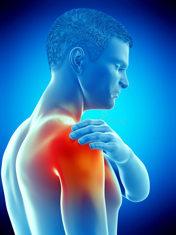 A painful shoulder. 3d rendered medically accurate illustration of a painful elbow vector illustration