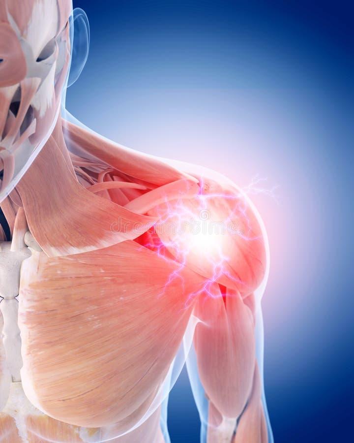 Painful shoulder. Medical 3d illustration of a painful shoulder stock illustration