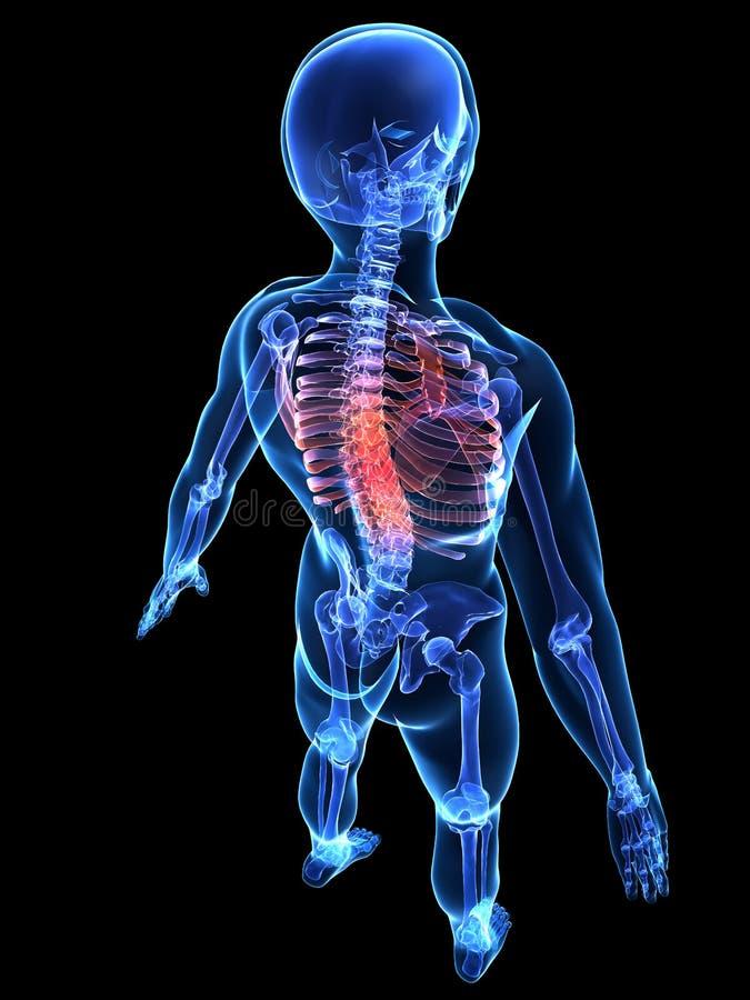 Download Painful spine stock illustration. Illustration of spine - 6787637