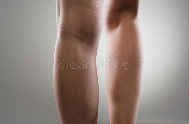 Painful woman's legs royalty free stock photo