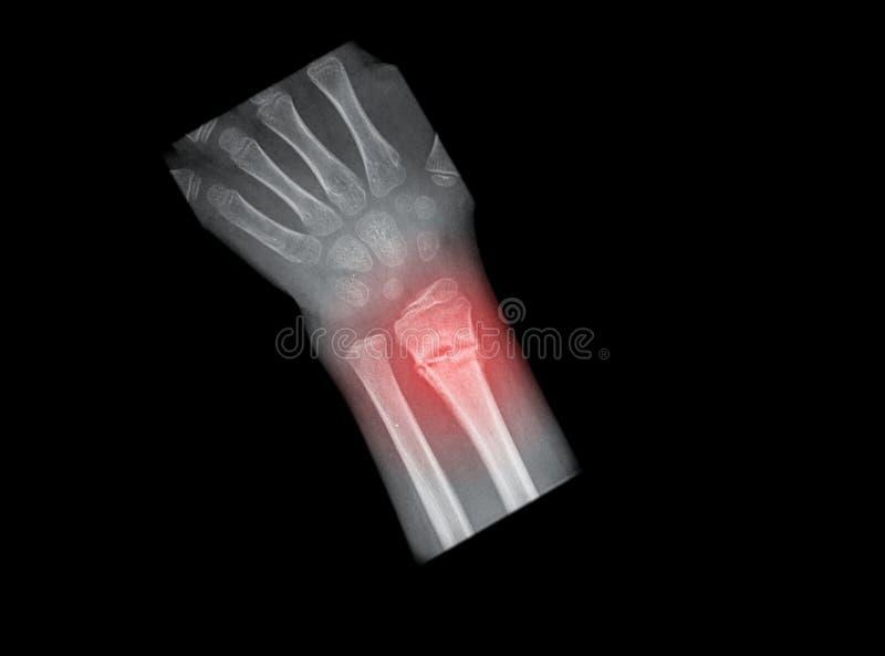 Painfull gebrochene Hand stockfoto