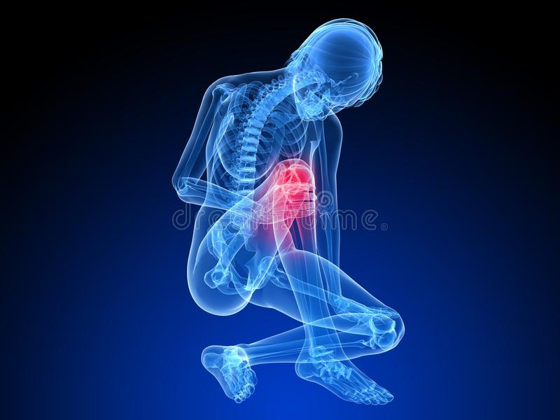 Download Painfull knee stock illustration. Image of sitting, blue - 14143928