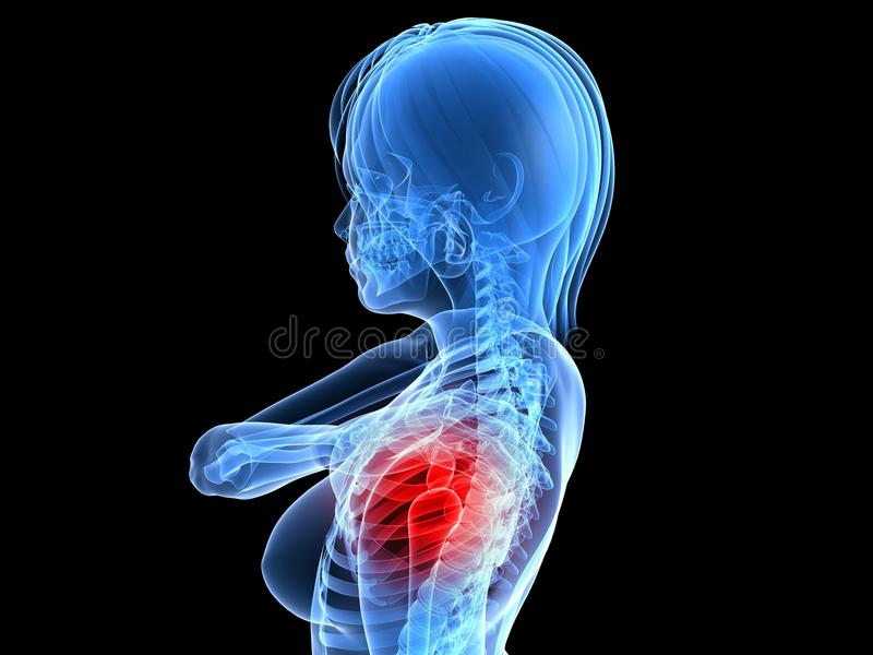Download Painfull Shoulder Royalty Free Stock Image - Image: 14143806