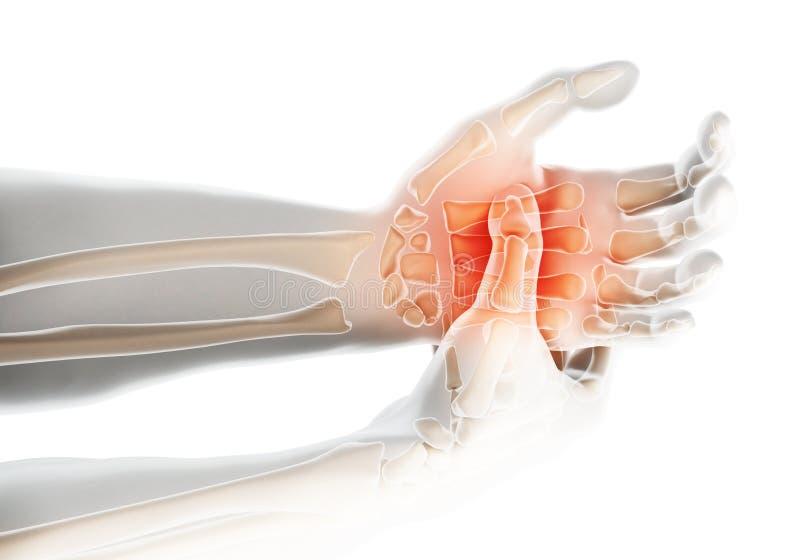 Palma dolorosa - raio X de esqueleto, conceito médico ilustração stock