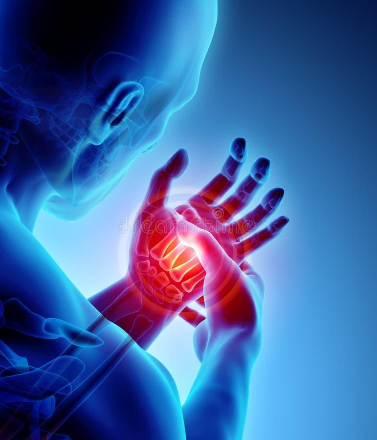 Palme schmerzlich - skeleton Röntgenstrahl, medizinisches Konzept vektor abbildung
