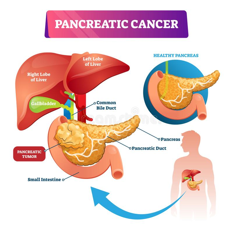 Pancreatic cancer vector illustration. Labeled ill stomach oncology disease. Pancreatic cancer vector illustration. Labeled sick stomach oncology disease scheme royalty free illustration
