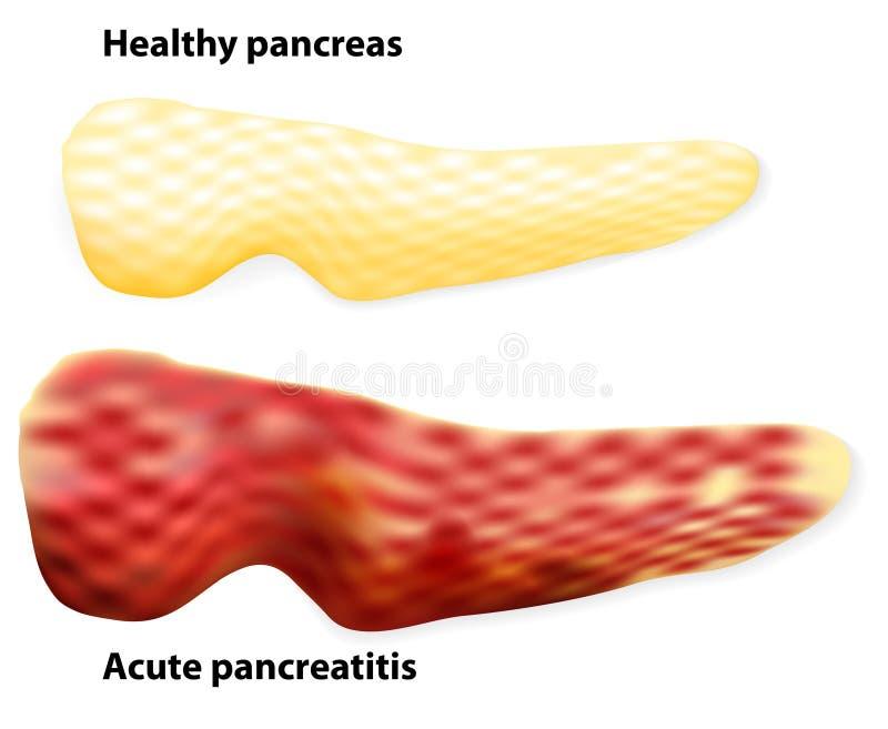 Pancreatite Le differenze fra il pancreas e il infla sani royalty illustrazione gratis