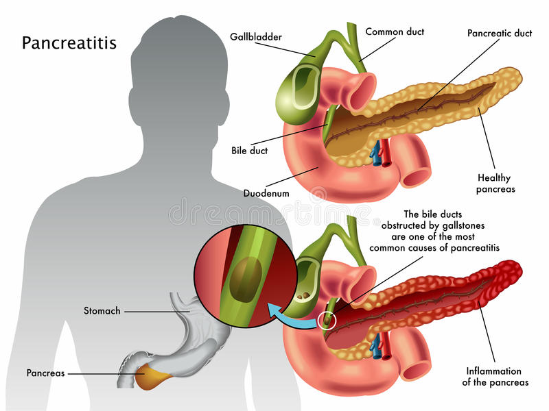 Pancreatitis royaltyfri illustrationer