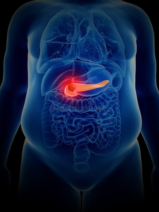 Pankreaskrebs vektor abbildung