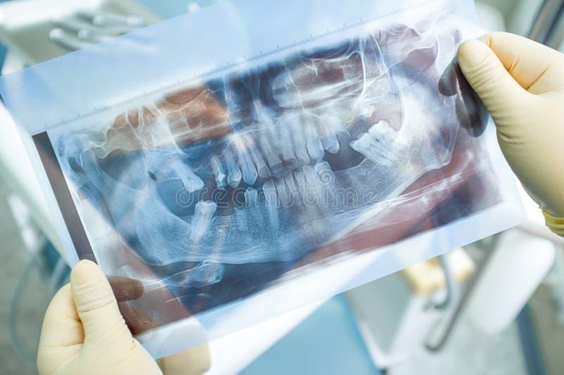 Panorama- bild för röntgenstråle av mänskliga tänder royaltyfri fotografi