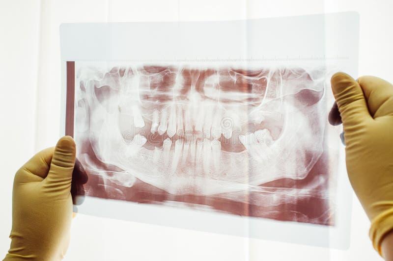 Panorama- bildläsning av den tand- mutationcloseupen royaltyfria bilder